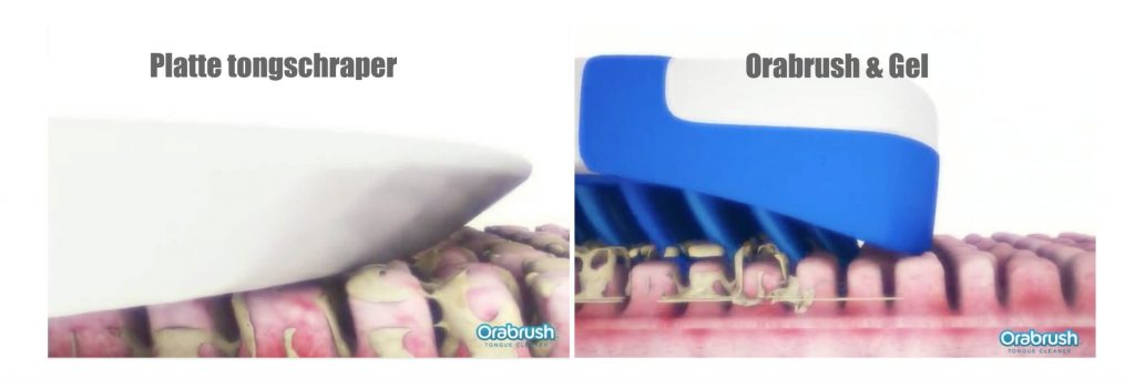 middel aanslag op tong