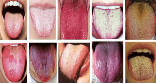 zere tong pijnlijk