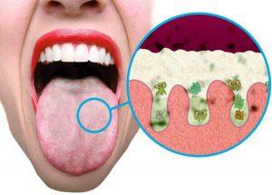 aanslag op tong wit
