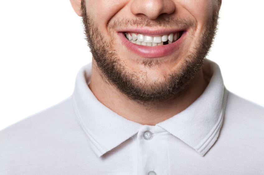 schone tanden zonder poetsen