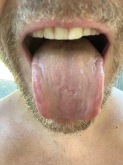 mondspoeling aanslag tong