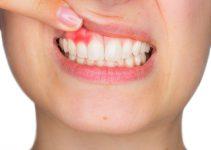 parodontitis oorzaak