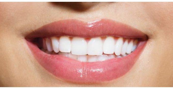 tandplak