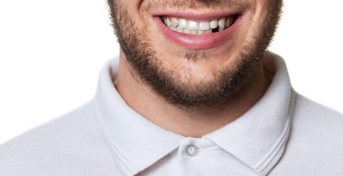 vet gezond voor je mond