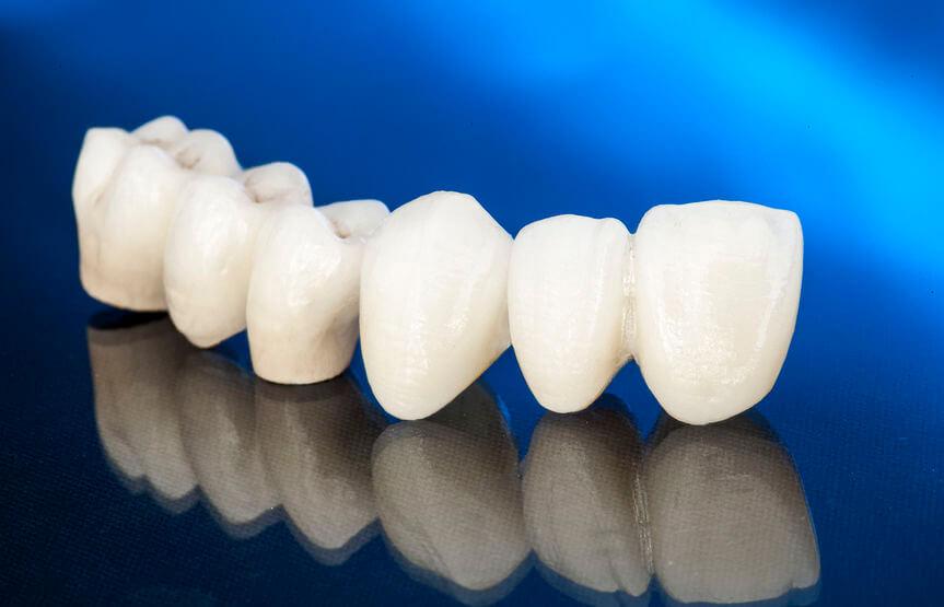 afgebroken tand en kies losgeslagen