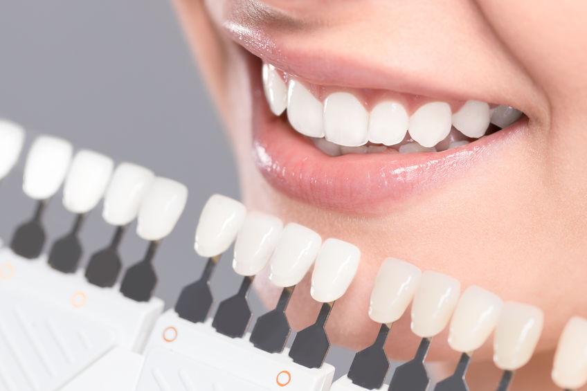Tandenbleken Vraagdetandarts Nl