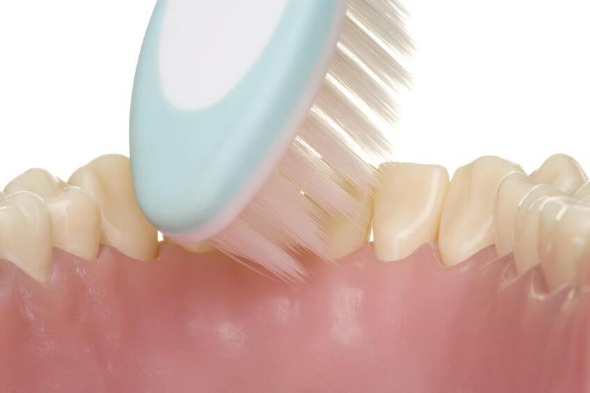 speeksel en tandsteen