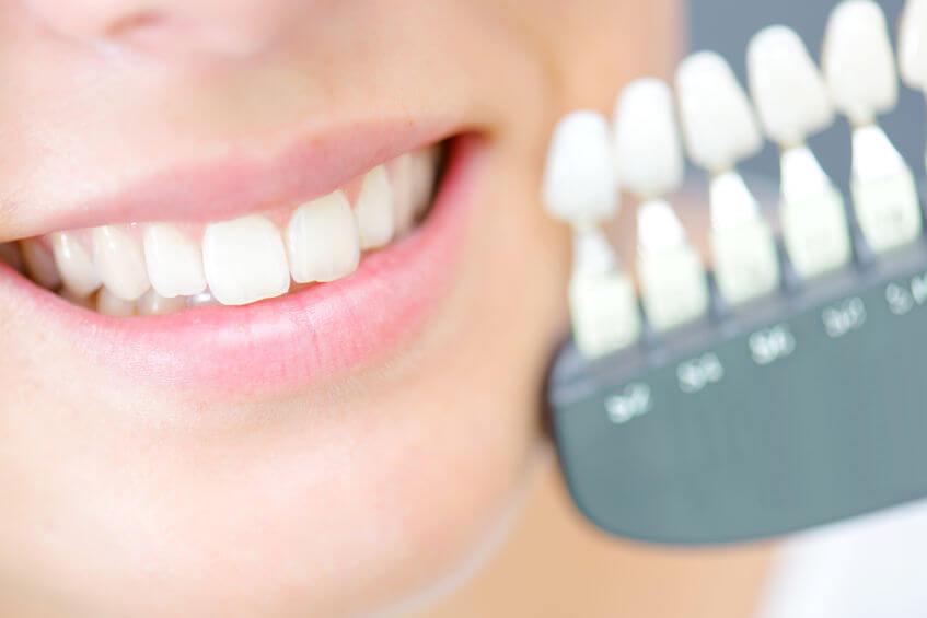 tanden vervangen