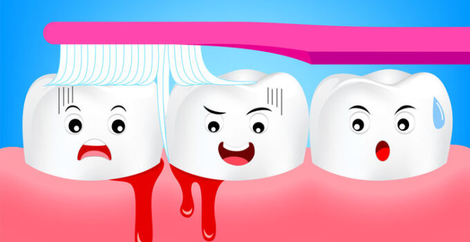 parodontitis nieuwe regels