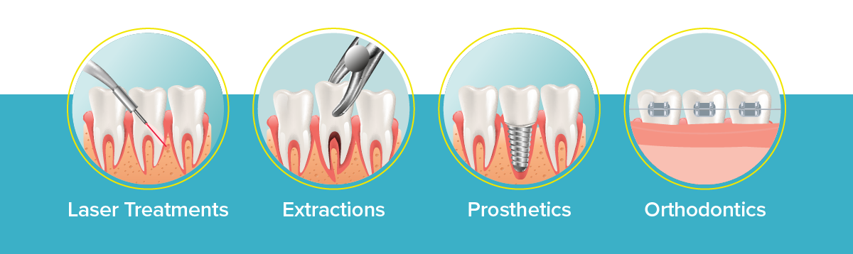 mondhygienist tandsteen verwijderen