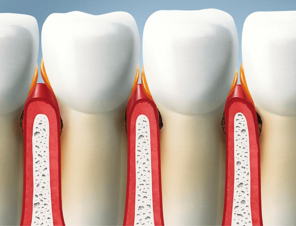 Prikkelbare darmsyndroom en tandvlees