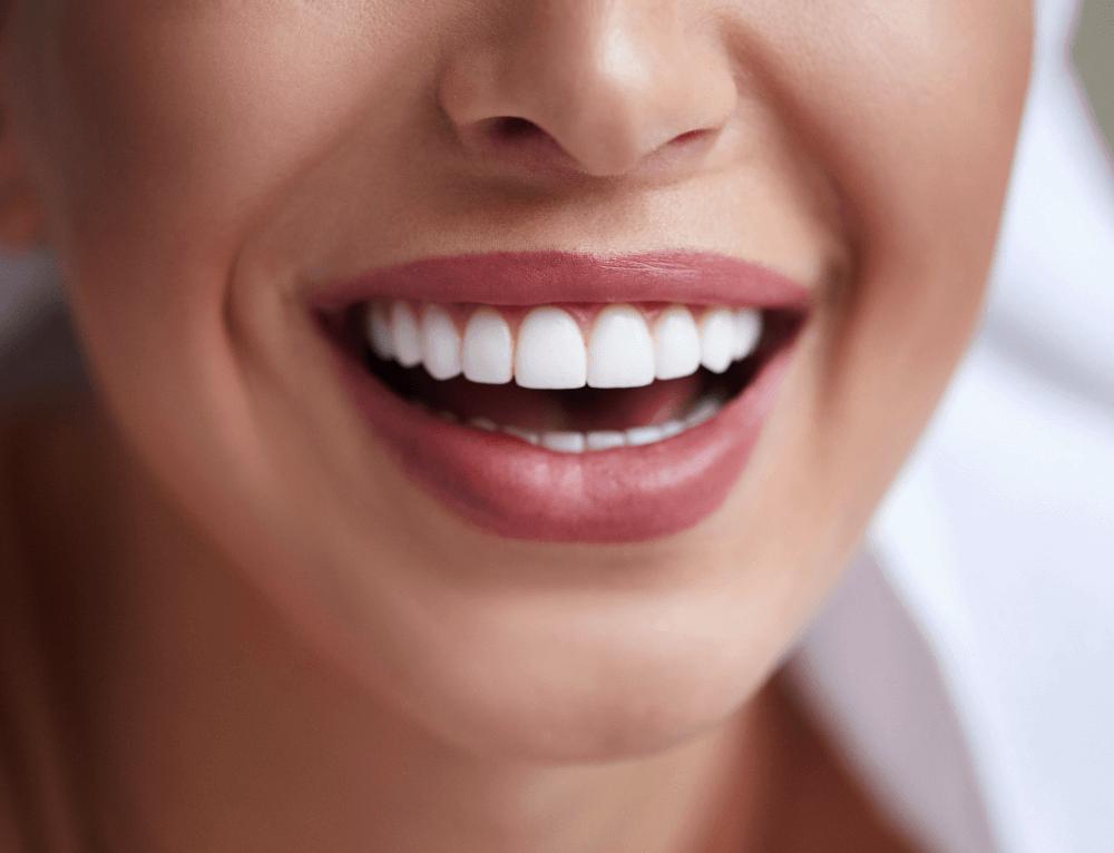 Tips tandpasta porseleinen facings